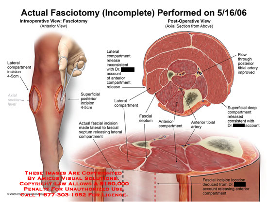 amicus,surgery,fasciotomy,leg,compartments,muscle,axial,medial,lateral,anterior,posterior,swelling