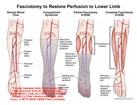 Fasciotomy To Restore Perfusion To Lower Limb