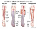 Arteries of the lower leg affected by partial and full fasciotomy.