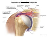AC joint and supraspinatus tearing among shoulder injuries.