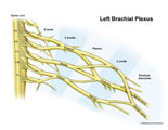Roots, trunks,divisions,and cords of brachial plexus labeled.