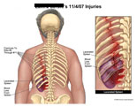 Ribs 5-11 fractured with lacerated spleen and bleeding.