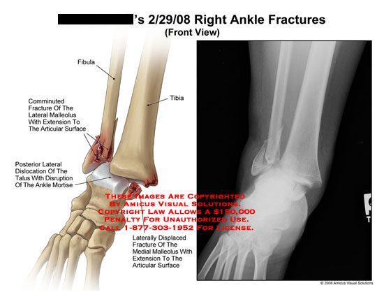 amicus,injury,ankle,fractures,lateral,medial,malleolus,disrupted,dislocated,mortise,joint,talus,comminuted,displaced,articular
