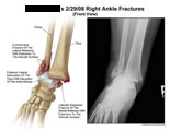 Medial and lateral malleolus fractures with dislocated anle joint.
