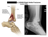 Comminuted fracture of lateral malleouls with posterior displacement of ankle mortise.