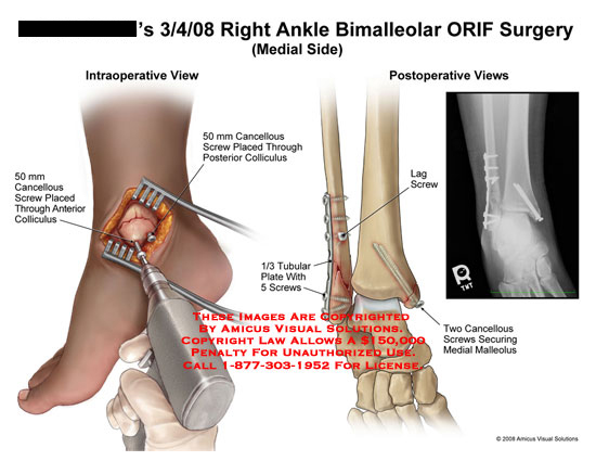 Cancellous screws placed in tibia, with post-op view.