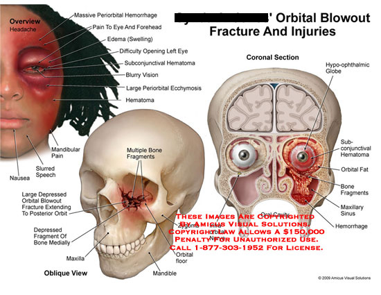amicus,injury,orbital,fracture,injury,injuries,blowout, periorbital,hemorrhage,eye,forehead,edema,subconjunctival,hematoma,vision,ecchymosis,mandibular,nausea,speech,posterior,fragment,hone,medially,maxilla,mandible,zygoma,coronal,hypo-ophthalmic,sub-conjunctival,sinus,hemorrhage,nerve,ophthalmic