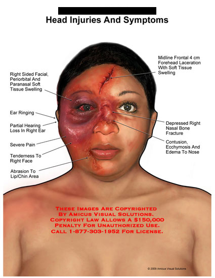 amicus,injury,summary,facial,periorbital,paranasal,soft,tissue,swelling,ear,ringing,hearing,loss,severe,pain,tenderness,face,abrasion,lip,chin,forehead,laceration,depressed,bone,fracture,contusion,ecchymosis,edema,nose