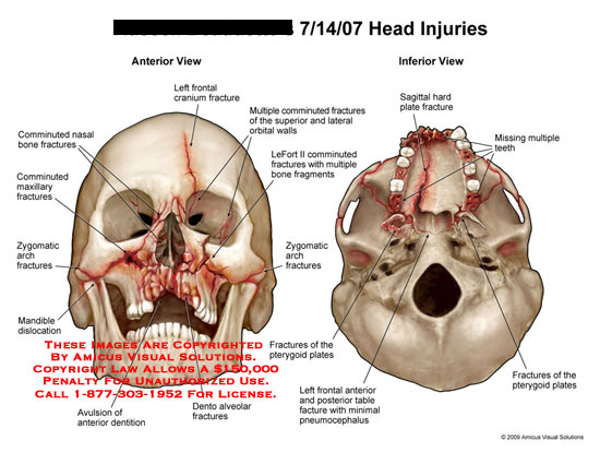 amicus,injury,cranium,fracture,anterior,inferiorfrontal,orbital,wall,comminuted,superior,lateral,nasal,bone,maxillary,zygomatic,arch,mandible,dislocation,dentition,anterior,avulsion,dento,alveolar,LeFort,sagittal,pterygoid,pneumocephalus,palate,teeth,skull