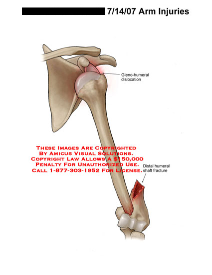 Medical diagrams and resources regarding Gleno-humeral dislocation with distal humerus shaft fracture..