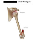 Gleno-humeral dislocation with distal humerus shaft fracture.