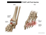 Malleolus, talus, and metatarsal fractures.