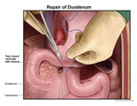 Tear in duodenum closed vertically with sutures.