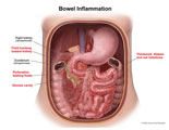 Leak from perforated bowel causing abcess and inflamed intestines.