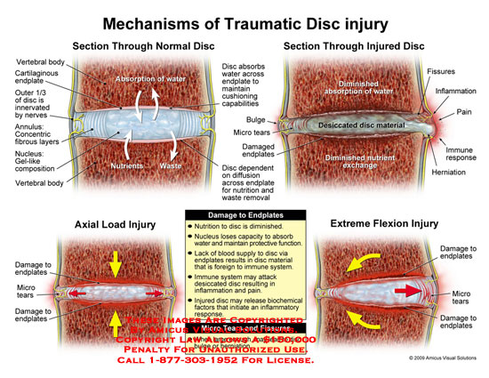 amicus,injury,disc,trauma,traumatic,mechanism,endplates,nutrition,desiccation,fissures,inflammation,immune,tears,biochemical,disruption,damaged