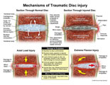 Normal disc space compared to injured disc with endplate disruption.