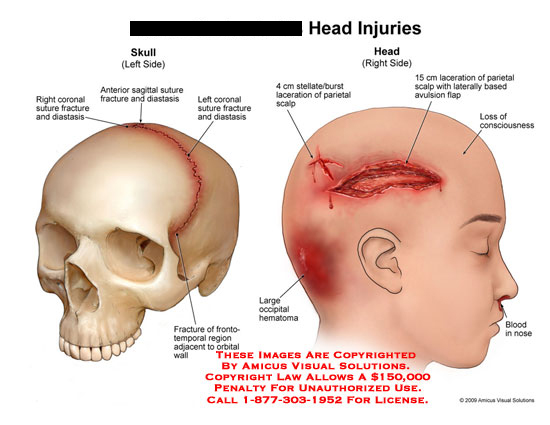 amicus,injury,head,skull,coronal,suture,fracture,distasis,anterior,sagittal,frontotemporal,orbital,wall,occipital,hematoma,stellate,burst,laceration,parietal,scalp,avulsion,flap,conciousness,loss,blood,nose,bleeding