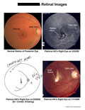 Normal retina compared to patient