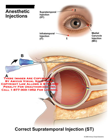 amicus,surgery,anesthetic,injections,supratemporal,infratemporal,medial,caruncle,eye