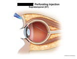 Needle placed incorrectly and puncturing posterior retina.