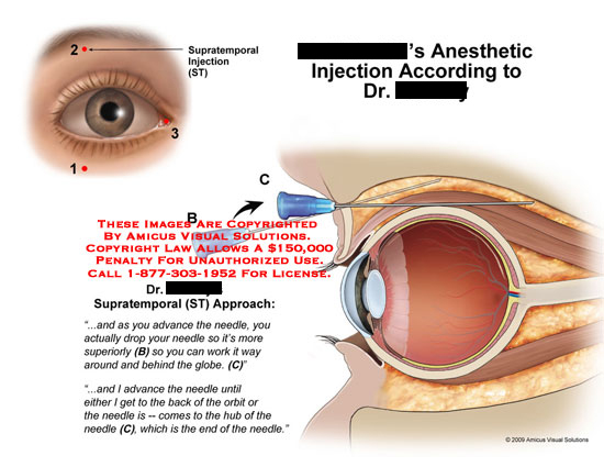 Injection needle is worked around eyeball.