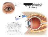Injection needle is worked around eyeball.