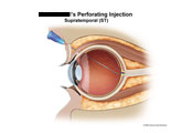 Injection needle shown piercing sclera and posterior retina.