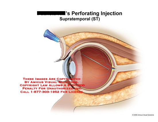 amicus,injury,perforating,injection,anesthetic,needle,eye,retina,retinal,perforation