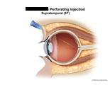 Illustration of amicus,injury,perforating,injection,anesthetic,needle,eye,retina,retinal,perforation