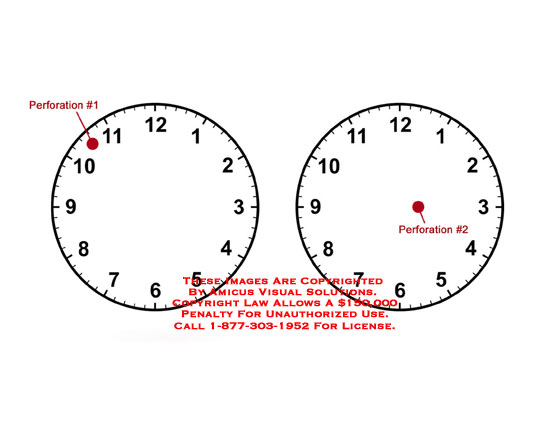 Perforations plotted on face of clock for reference of location.