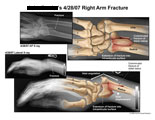 Comminuted fracture of distal radius with volar displacement.