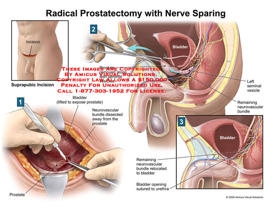 Amicus Illustration Of Amicus Surgery Prostatectomy Radical Nerve