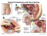 Prostate removal through anterior approach, saving nerves to penis.
