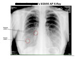 Two nodules visible in right lung.