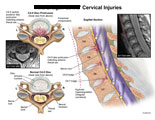 Cervical and axial views of disc protrusion indenting thecal sac.