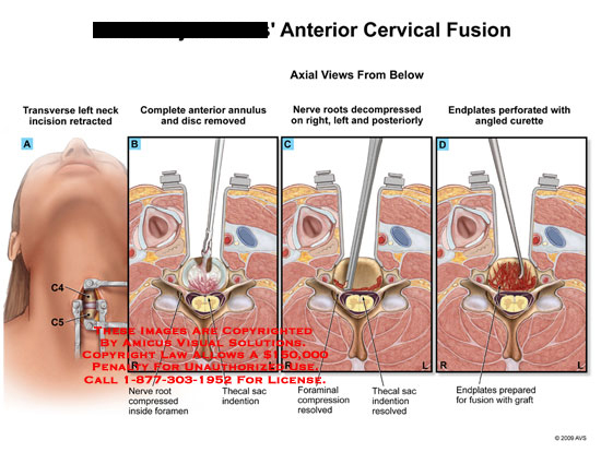 amicus,surgery,cervical,fusion,transverse,incision,annulus,anterior,disc,nerve,root,compressed,foramen,thecal,sac,decompress,endplate,curette,angled,graft