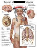 Cerebellar stroke, skull base fracture, arm fractures, and rib fractures.