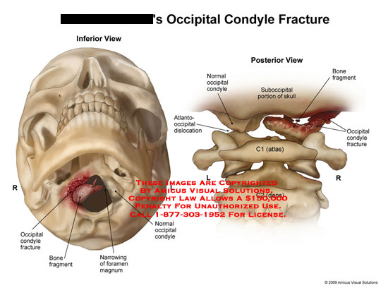 amicus,injury,fracture,condyle,occipital,bone,fragment,foramen,magnum,atlantooccipital,dislocated,dislocation,suboccipital,skull,C1,atlas,C2,dens