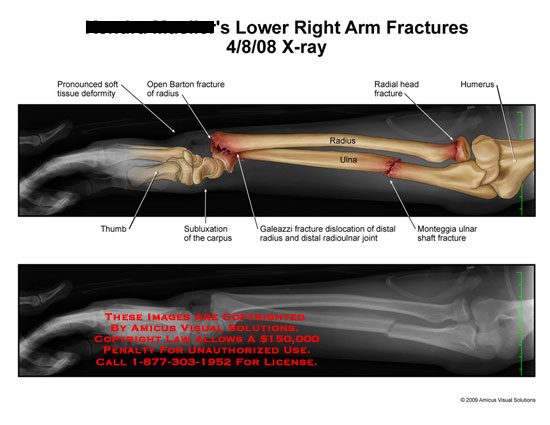 amicus,radiology,arm,fracture,open,Barton,radius,soft,tissue,deformity,deformed,thumb,carpus,subluxation,ulna,radial,head,humerus,Monteggia,Galeazzi,distal,radioulnar,joint