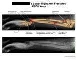 Barton and Galeazzi fractures of radius, Monteggia fracture of ulna, fracture of radial head.