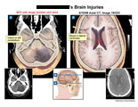 Cerebellar infarct and blood in lateral ventricles based on CT.