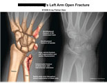 Fractured 5th metcarpal, hamate, and comminuted fracture of distal ulna.