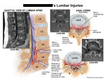 Sagittal and axial views of disc bulges at L4-5 and L5-S1 with nerve compression.