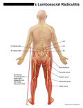 Nerves leading to legs, with numbness from lower back to feet.