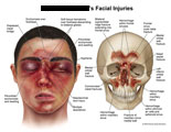Multiple lacerations and swelling around nose and eyes, with underlying skull fractures.