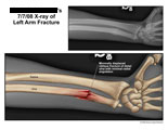 Oblique fracture of distal ulna with radial angulation.