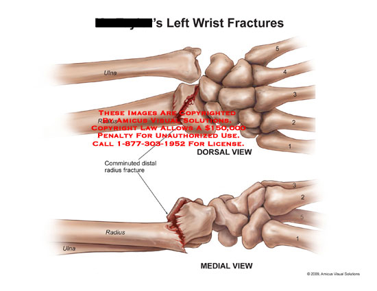 Comminuted distal radius fracture with angulation.