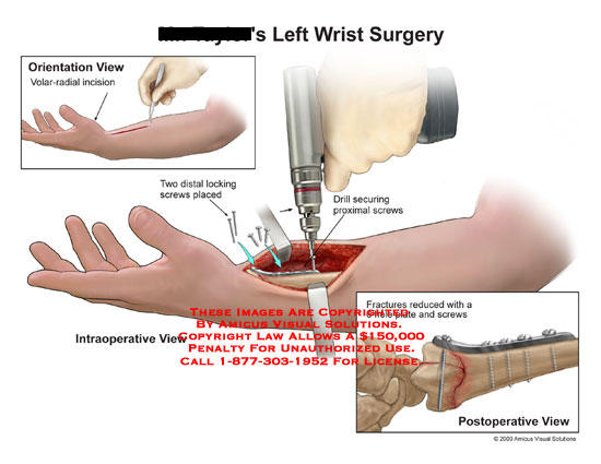 amicus,surgery,wrist,volar,radial,incision,screws,plate,drill,proximal,reduced,reduction,radius