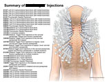 Paravertebral facet blocks, trigger point injections, and medial branch blocks.