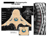 2 mm syrinx in spinal cord at T8, illustrated on MRI.